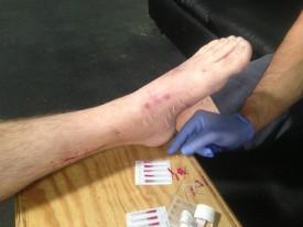 needled foot